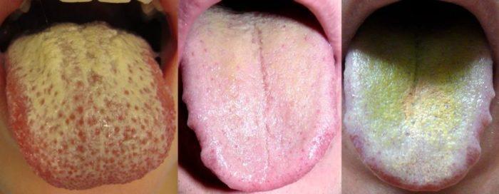 Желтый налет на языке у взрослых: причины, методы лечения