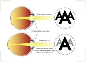 Зрение минус 2: что это значит и как восстановить?