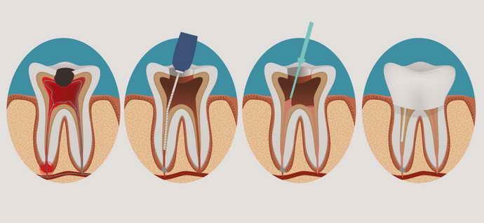 Как пломбируют корневые каналы в зубах