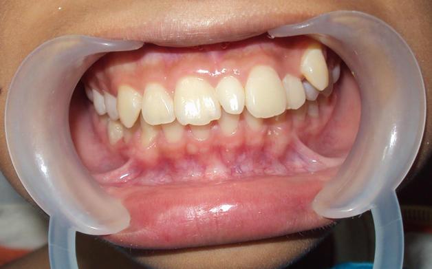 клыки зубы
