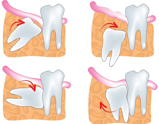 Показания к удалению зуба