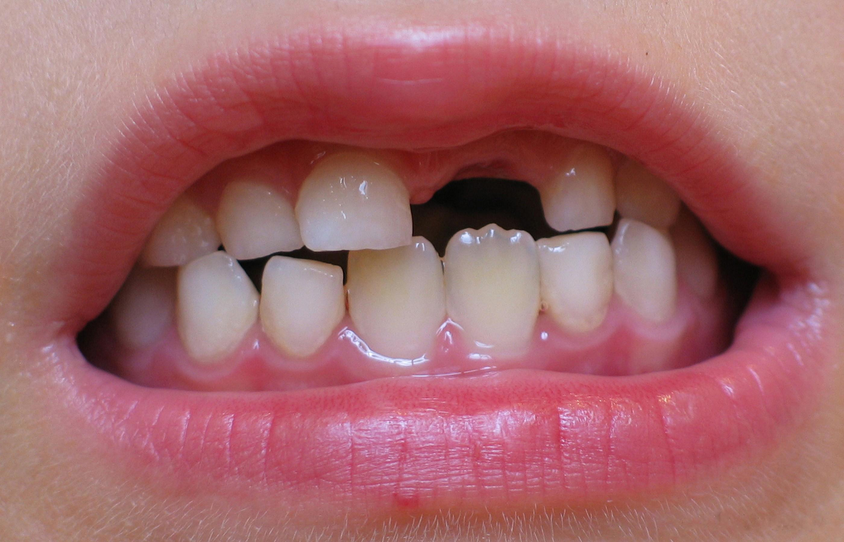 Как отличить молочный зуб от коренного