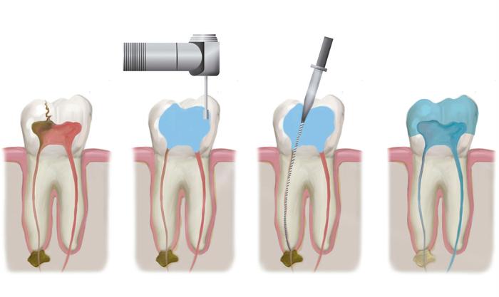 Лечение каналов зуба: этапы, методы и возможные осложнения