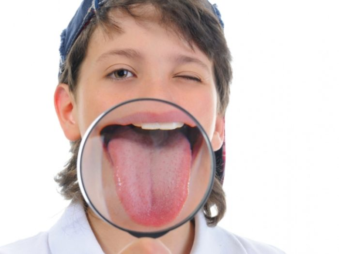 У ребенка коричневый налет на языке