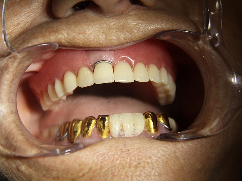 картинки про вставные зубы рано обнаружился его