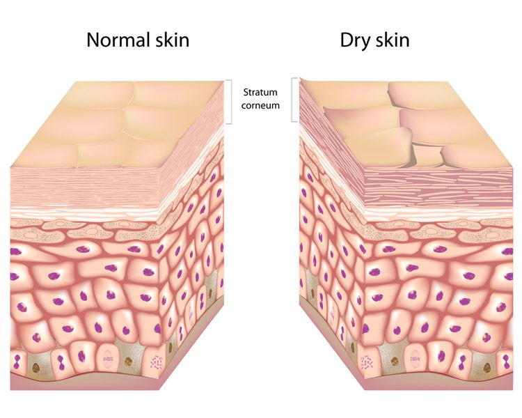 Зачем устранять ороговевшие частички кожи?