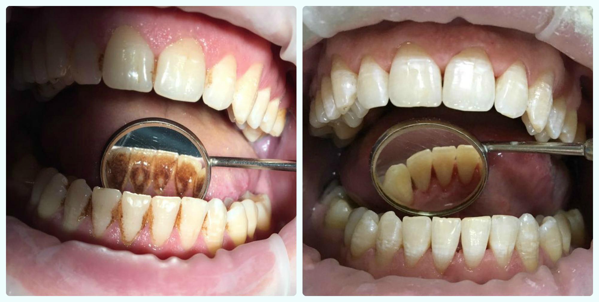 Больно ли удалять зубной камень