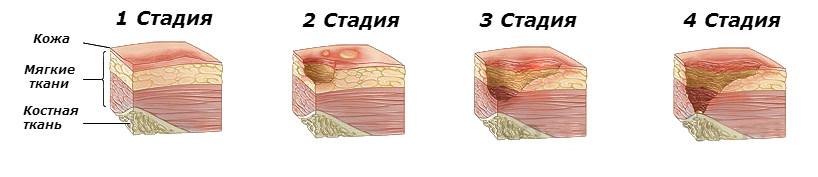 Трофическая язва на ноге: симптомы и лечение