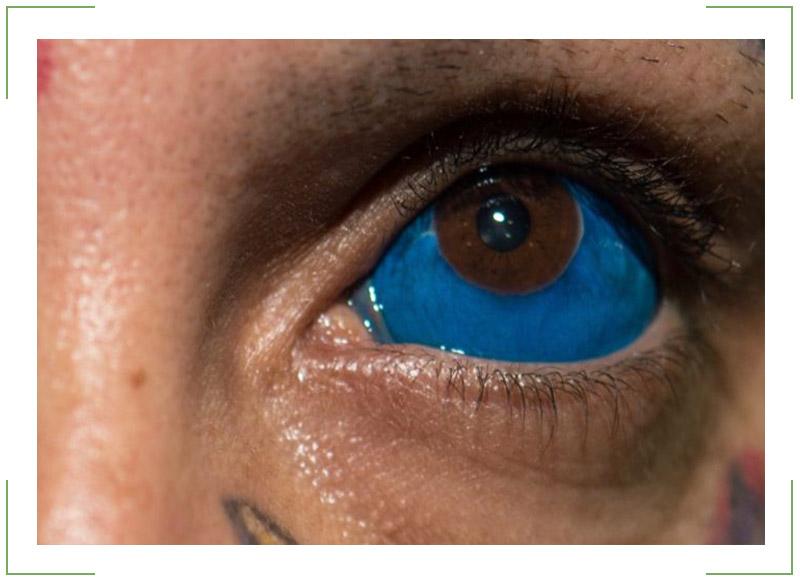 Татуировка глазного яблока
