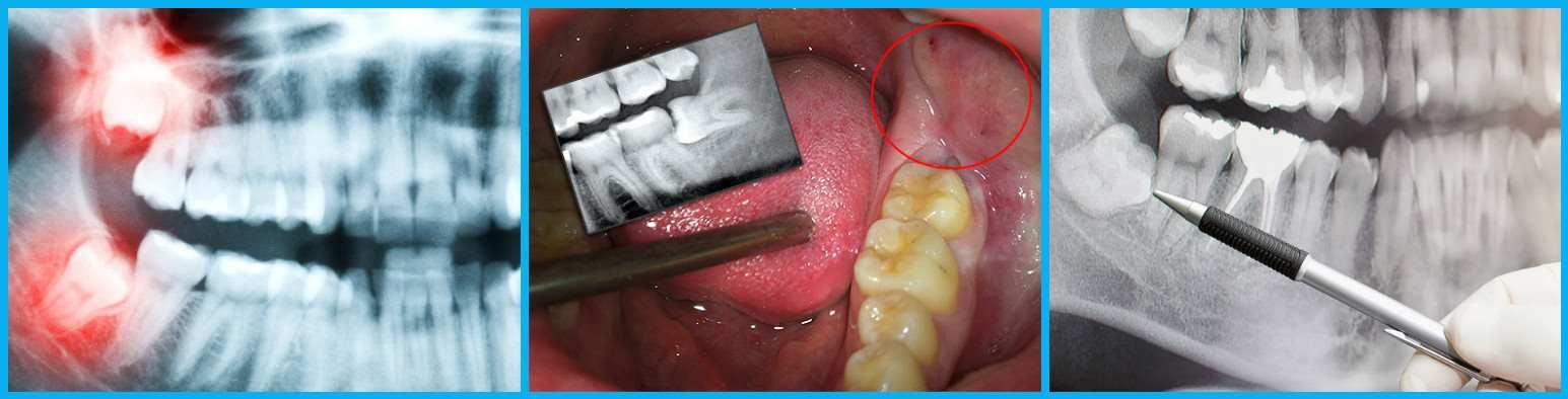 Сколько будет болеть зуб мудрости после удаления