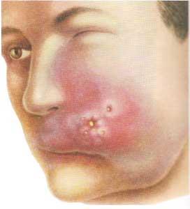 Последствия фурункула на лице