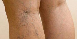 варикозное расширение вен нижних конечностей болезнь