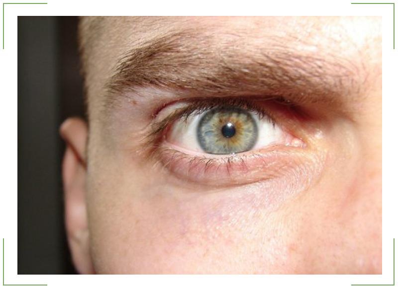 retinit-glaza