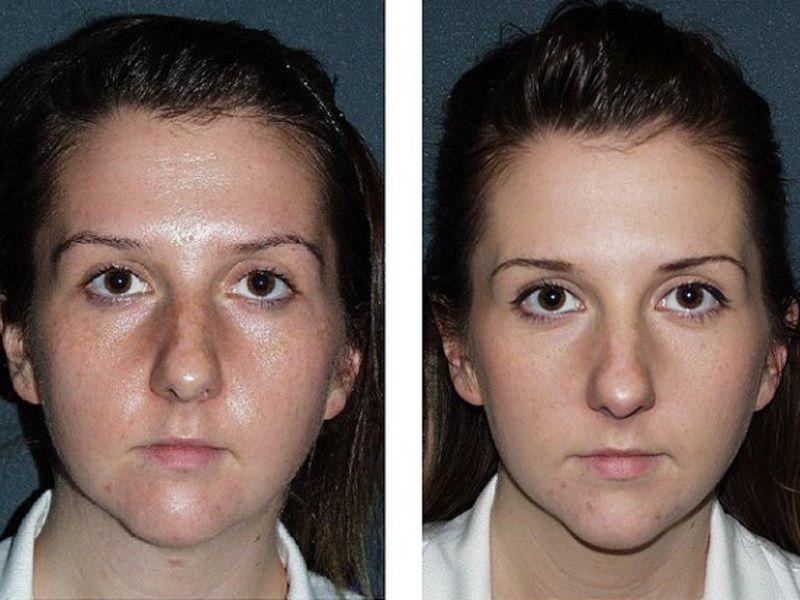 Жирность кожи до и после
