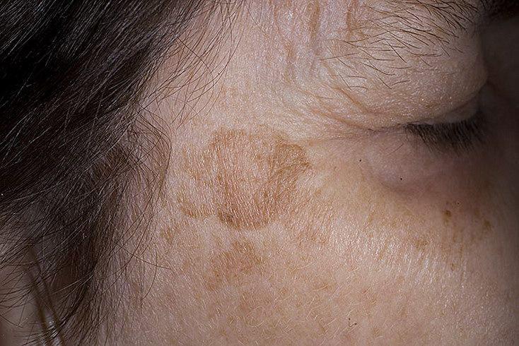 Возрастная пигментация на коже, как лучше убрать? Советы врачей