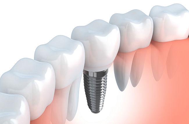 протез зубов