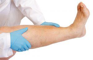 язва варикоз как лечить