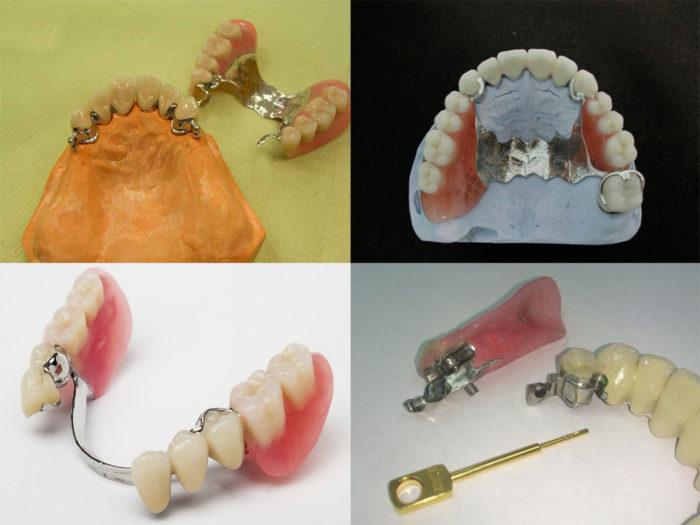 Клинико-лабораторные этапы изготовления бюгельных протезов