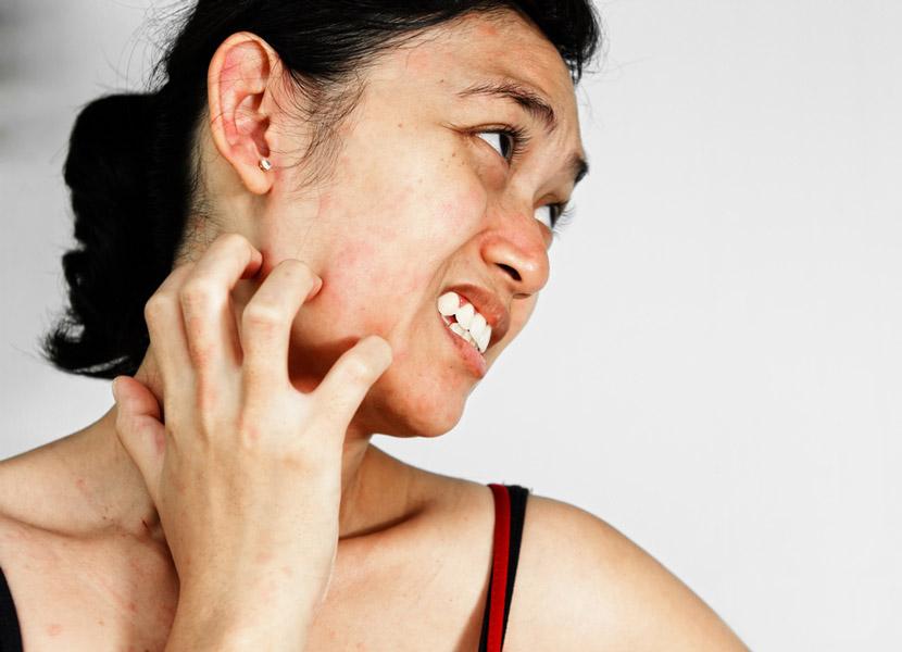 чешет лицо, аллергия