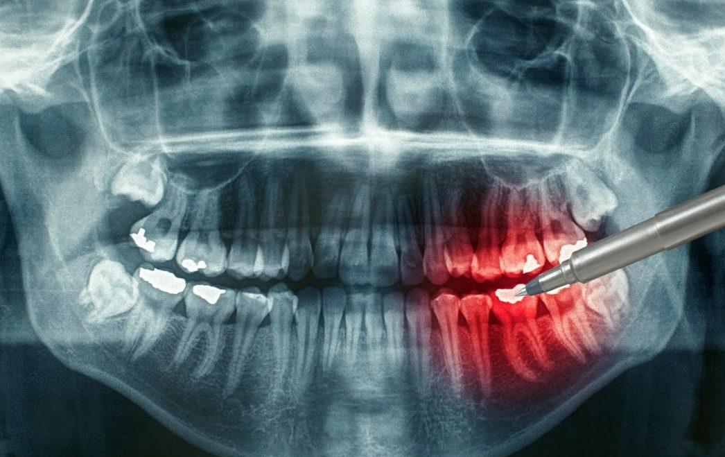 При ходьбе отдает в зуб