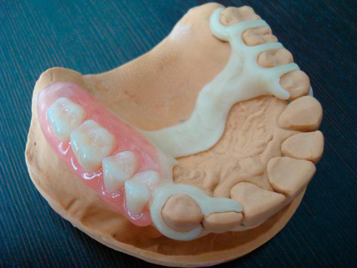 Ацеталовый протез