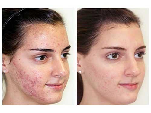 Эффект клиндовита на кожу