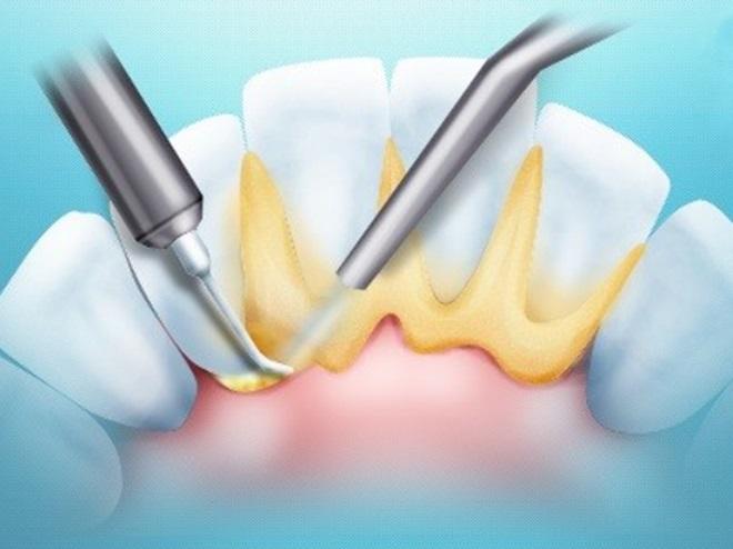 Чем опасен зубной камень