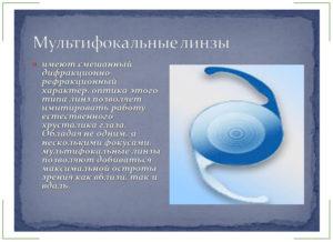 Интраокулярные линзы (ИОЛ): что это такое?