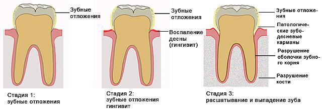 Особенности гипертрофического гингивита