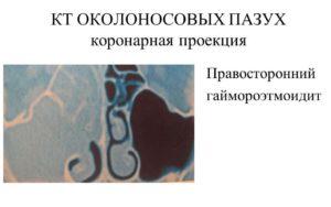 КТ околоносовых пазух