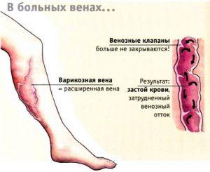 варикоз внутренний лечение болезни