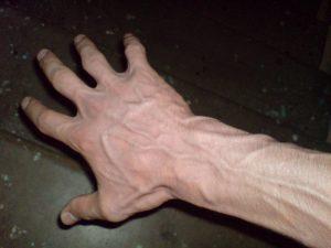 варикоз болезнь на руках