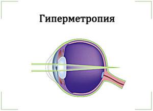 Гиперметропия средней степени