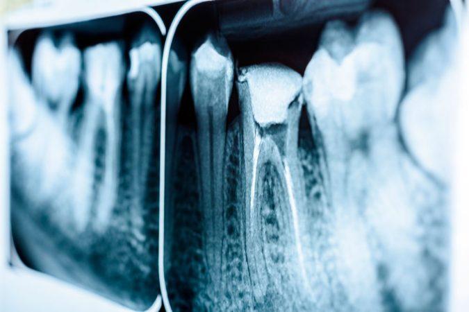 Уплотнения и шишки на деснах после удаления зуба