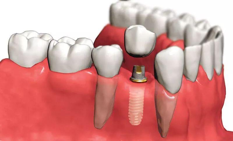 Титановый штифт в зубе