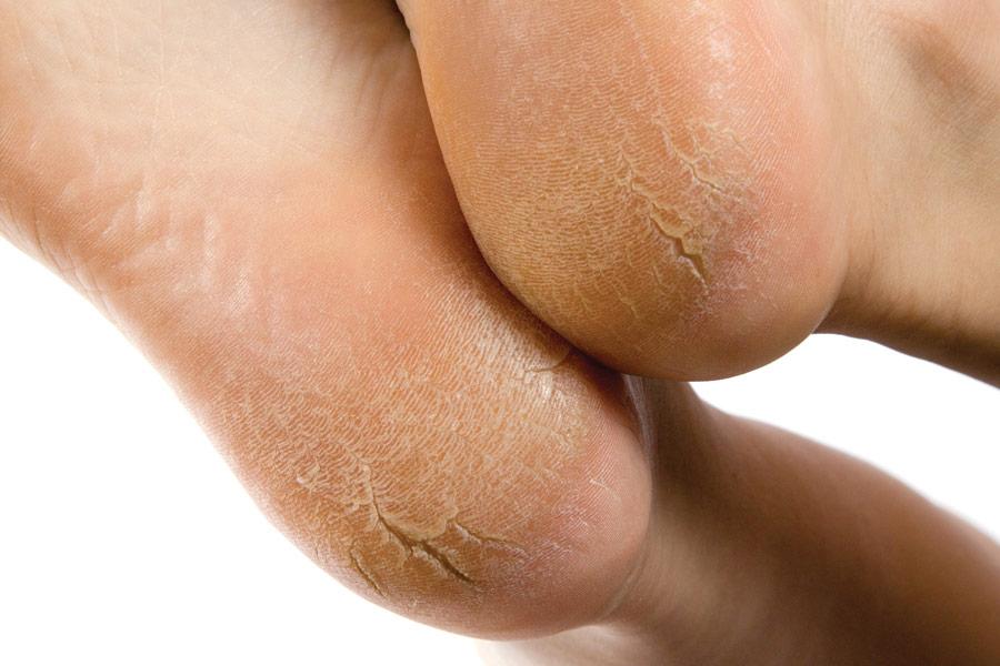 трещины на пятках ног, сухость