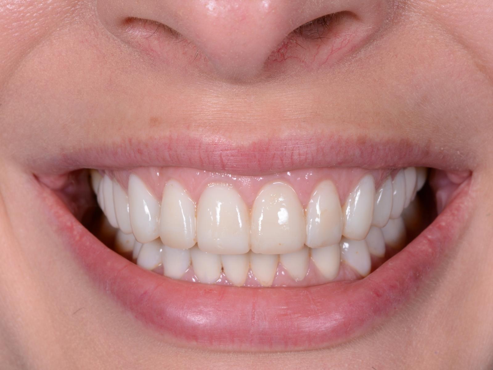 Можно ли ставить коронку на живой зуб
