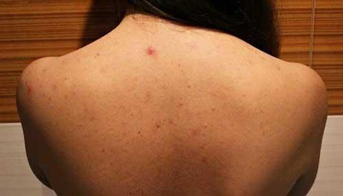 Профилактика и уход за кожей перед загаром