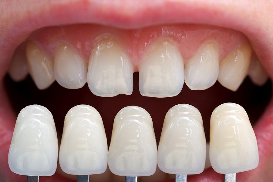 Что такое фарфоровые зубы