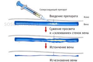 склерозирование вен принцип выполнения