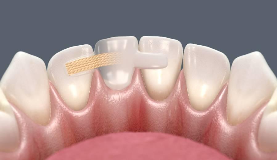Особенности протезирования без обточки зубов