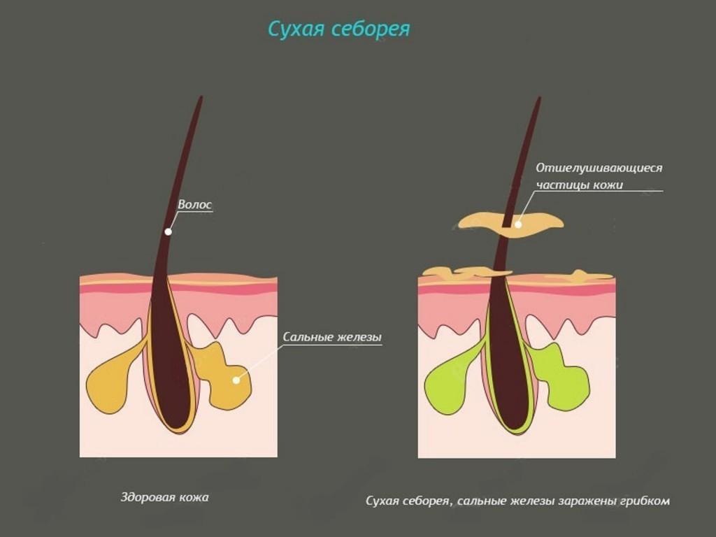 Что такое себорея и как ее побороть?
