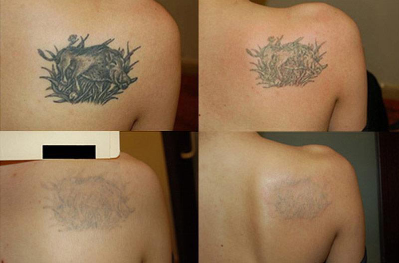 удаление татуировки, сведение