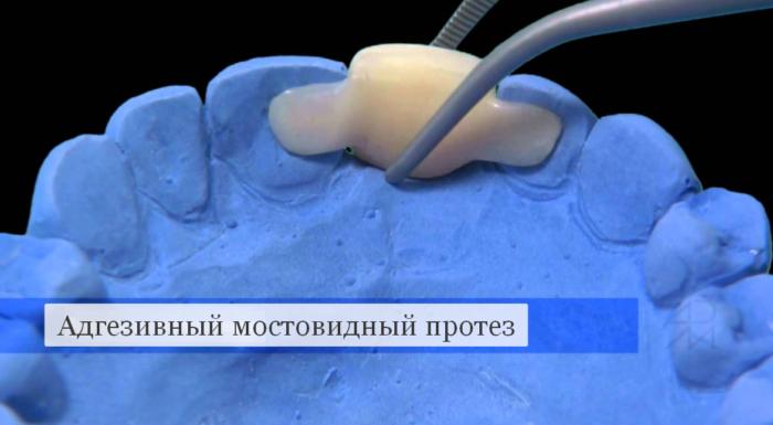 Адгезивный мостовидный протез