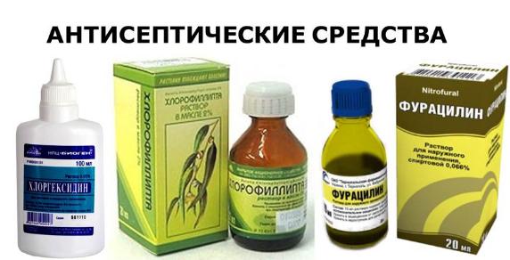 Виды стоматита