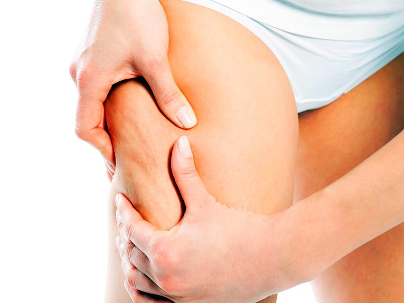 6 простых упражнений против целлюлита восстановят здоровый вид вашей внешности