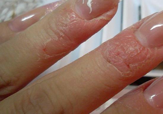 Чем убрать шелушение кожи после маникюра?