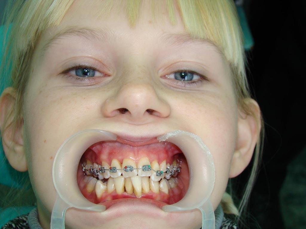 Можно ли ставить брекеты на одну челюсть