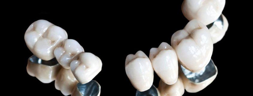 Металлопластмассовые мостовидные протезы