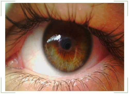 Отек сетчатки глаза